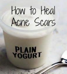 how to heal acne scars naturally diy