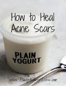 How To Heal Acne Scars Naturally