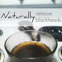 natural ways to remove blackheads