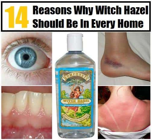 14 Mind-Blowing Witch Hazel Home Remedies