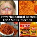 14 All Powerful Natural Remedies For A Sinus Infection
