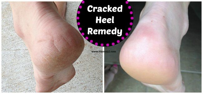 uses for hydrogen peroxide cracked heels